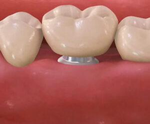Implantat s krono