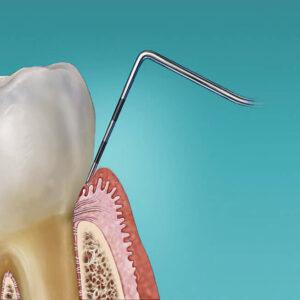parodontalna sonda