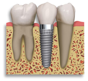 Implantat nadomešča zob