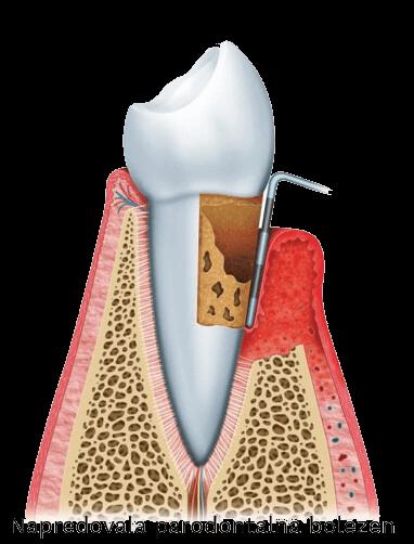 napredovala parodontalna bolezen