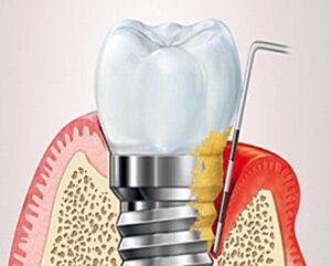 Vnetje ob implantatu