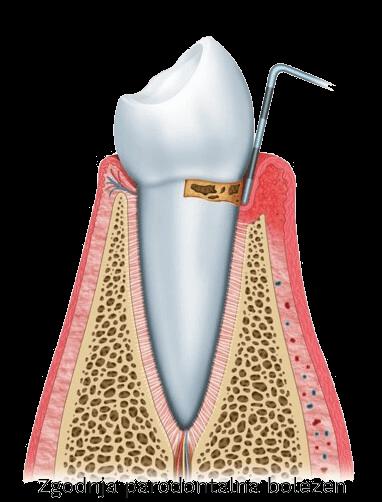zgodnja parodontalna bolezen