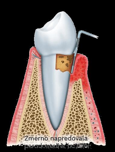 zmerno napredovala parodontalna bolezen