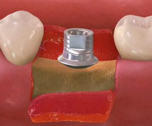 Nadgradnja implantata